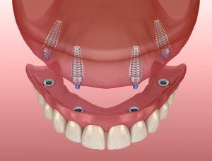 полное протезирование зубов имплантами