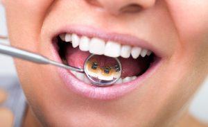 лингвальные брекеты для зубов