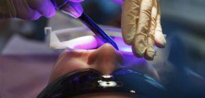 установка световой пломбы на зуб