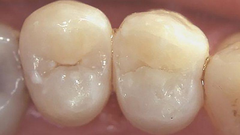зуб после лечения кариеса
