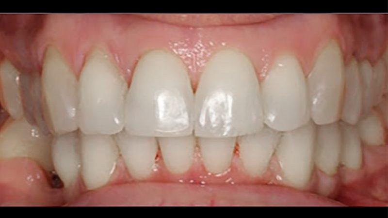 зубы после съема брекетов