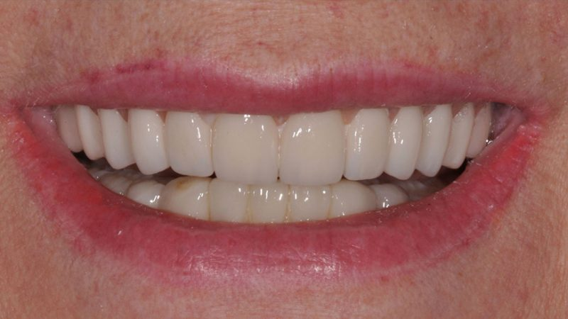 полная имплантация зубов