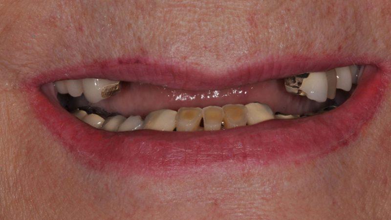зубы перед имплантацией