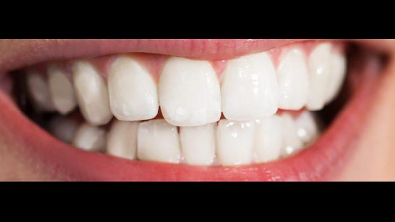 зубы отбеленные zoom4