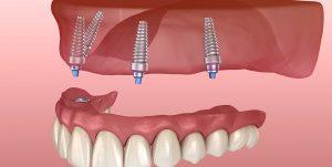 протез на 4 имплантах